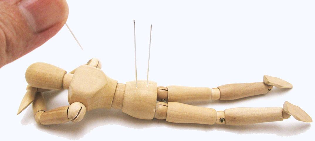 しぶとい腰痛に初めての針治療。筋肉が固まる原因と、針が効く理由